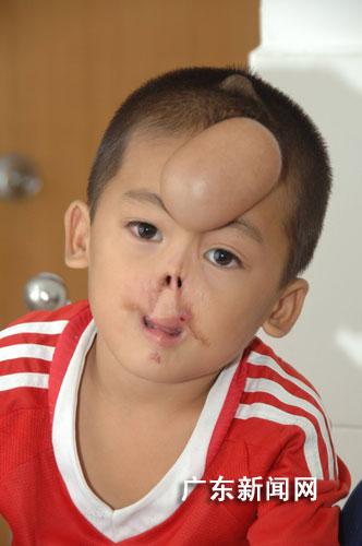 广东发型被图片咬掉鼻唇再造鼻唇a发型图片中学生男孩大全全集好看母亲大图片