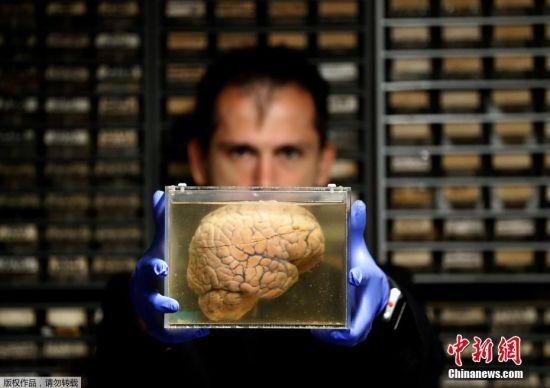 当地时间2017年7月19日,比利时达菲尔,当地精神科医院的研究人员在研究人脑标本,该医院拥有3000多颗人脑标本用以精神科疾病研究。