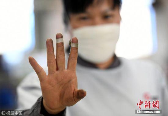 很多人认为,每天与钱打交道,数钱数到手抽筋很令人羡慕,但是对于点钞员来说,一天数钱下来不是手抽筋,而是手出血。 黎寒池 摄 图片来源:视觉中国