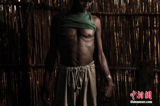 """2019荷赛奖环境类组照一等奖:乍得湖危机 Marco Gualazzini(Contrasto) 摄 乍得Melea,参与打击伊斯兰圣战行动的活动家Ababakar Mbomi战士身上的伤口,2014年,Ababakar的妻子遭到""""博科圣地""""组织绑架,他自己遭到袭击身中11枪。"""