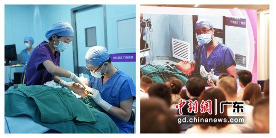 第十七届全国医学美容学术大会10月8日至10日在广州举行。期间进行了7场手术直播,图为直播现场。 作者 婉文